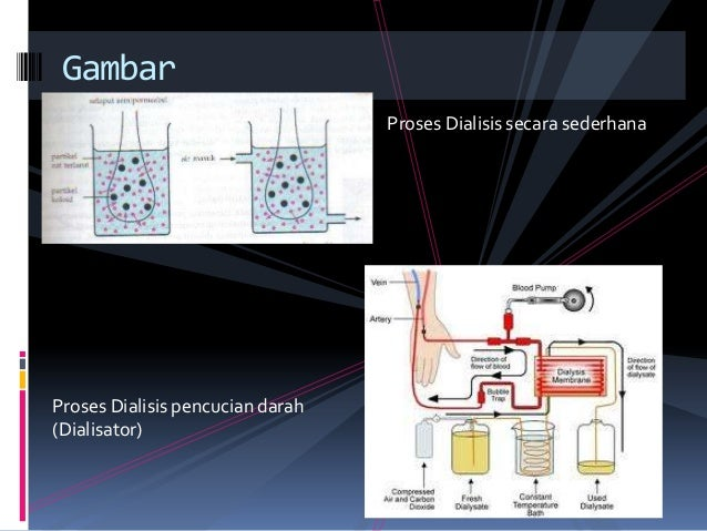 proses hemodialisis pdf