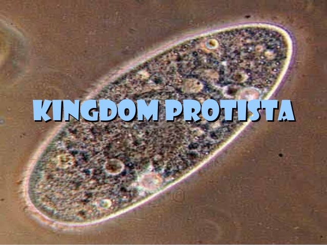 kingdom protista Everyone thinks there is typical protist, but really there isn't one kingdom protista is the most diverse organism, and it could be multicellular and unicellular.