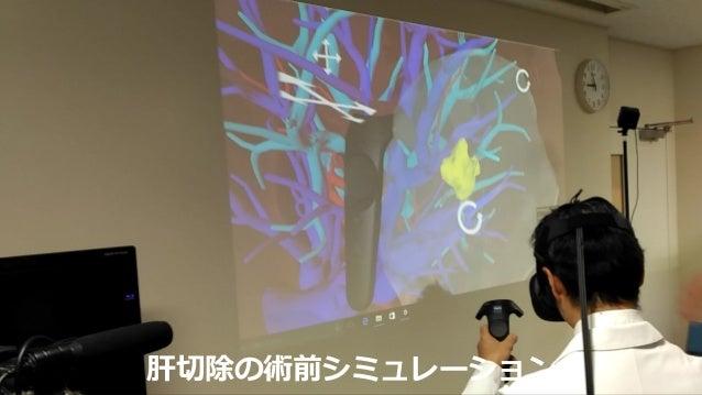 腎臓への穿刺の術前シミュレーション