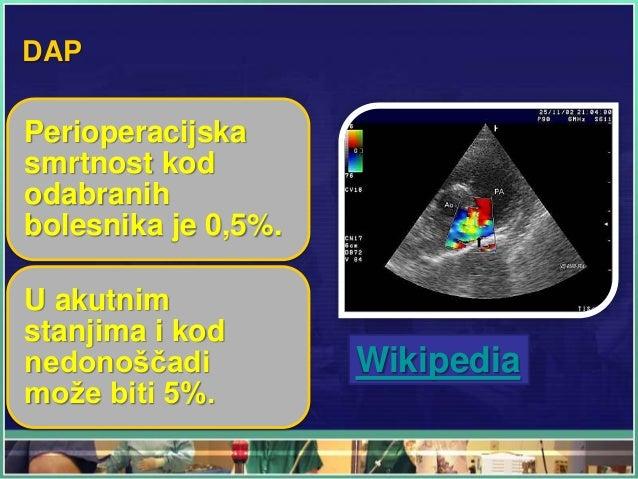 DAP Perioperacijska smrtnost kod odabranih bolesnika je 0,5%. U akutnim stanjima i kod nedonoščadi može biti 5%. Wikipedia