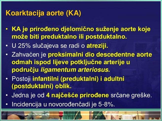 Koarktacija aorte (KA) • KA je prirođeno djelomično suženje aorte koje može biti preduktalno ili postduktalno. • U 25% slu...