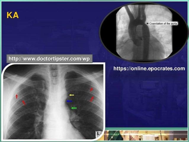 KA http://www.doctortipster.com/wp https://online.epocrates.com