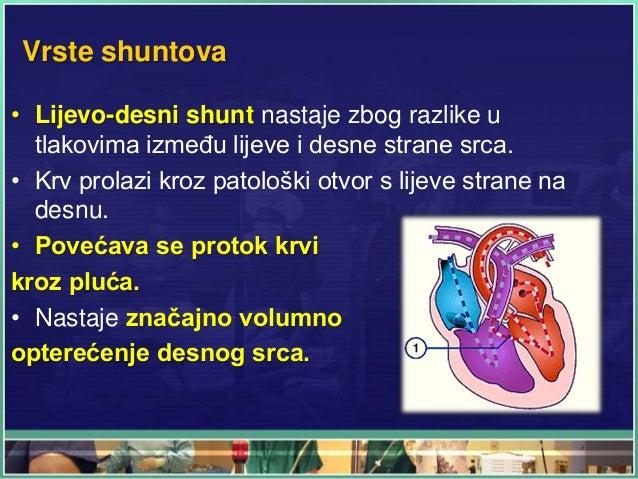 Vrste shuntova • Lijevo-desni shunt nastaje zbog razlike u tlakovima između lijeve i desne strane srca. • Krv prolazi kroz...