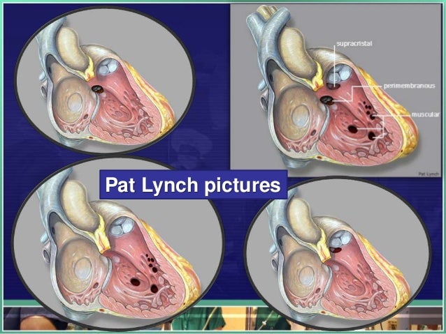 Pat Lynch pictures