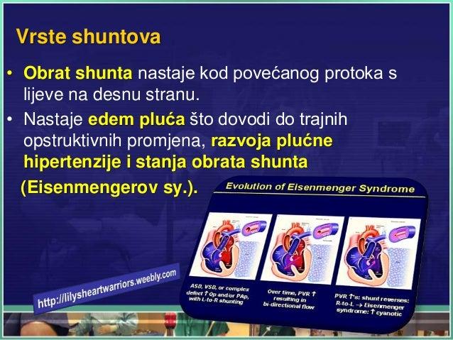 Vrste shuntova • Obrat shunta nastaje kod povećanog protoka s lijeve na desnu stranu. • Nastaje edem pluća što dovodi do t...