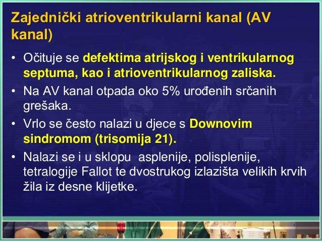 Zajednički atrioventrikularni kanal (AV kanal) • Očituje se defektima atrijskog i ventrikularnog septuma, kao i atrioventr...