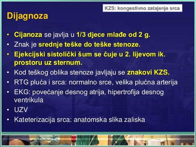 Dijagnoza • Cijanoza se javlja u 1/3 djece mlađe od 2 g. • Znak je srednje teške do teške stenoze. • Ejekcijski sistolički...