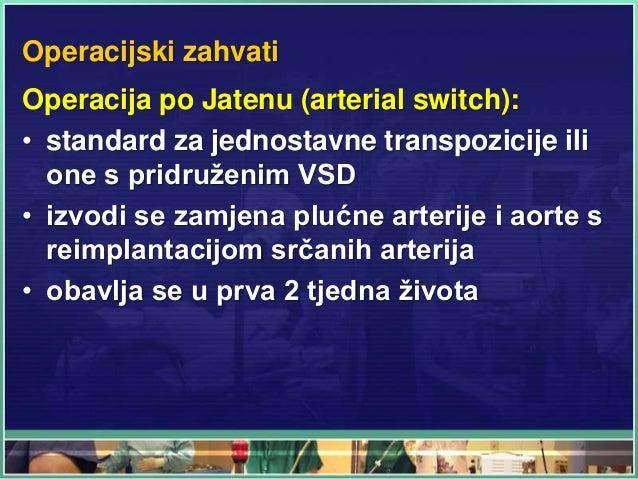 Operacijski zahvati Operacija po Jatenu (arterial switch): • standard za jednostavne transpozicije ili one s pridruženim V...