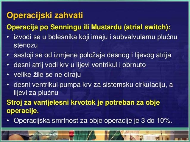 Operacijski zahvati Operacija po Senningu ili Mustardu (atrial switch): • izvodi se u bolesnika koji imaju i subvalvularnu...
