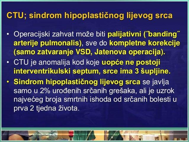 CTU; sindrom hipoplastičnog lijevog srca • Operacijski zahvat može biti palijativni (˝banding˝ arterije pulmonalis), sve d...