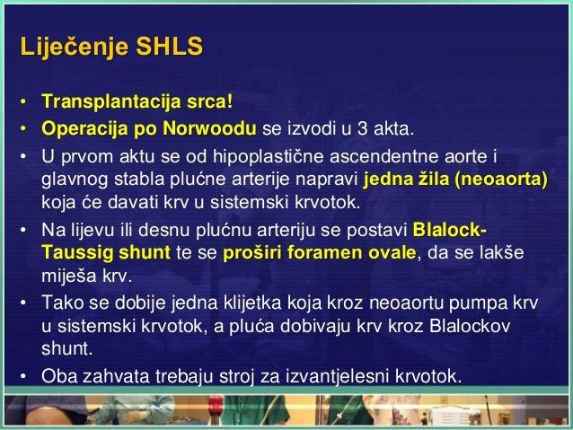 Liječenje SHLS • Transplantacija srca! • Operacija po Norwoodu se izvodi u 3 akta. • U prvom aktu se od hipoplastične asce...