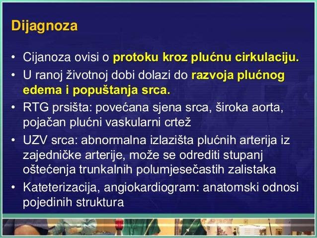 Dijagnoza • Cijanoza ovisi o protoku kroz plućnu cirkulaciju. • U ranoj životnoj dobi dolazi do razvoja plućnog edema i po...