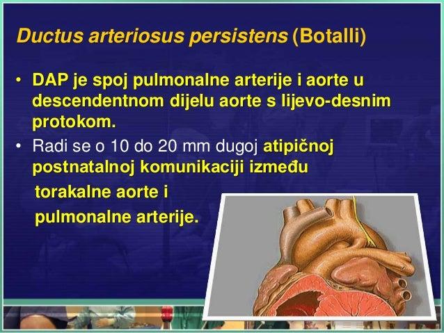 Ductus arteriosus persistens (Botalli) • DAP je spoj pulmonalne arterije i aorte u descendentnom dijelu aorte s lijevo-des...