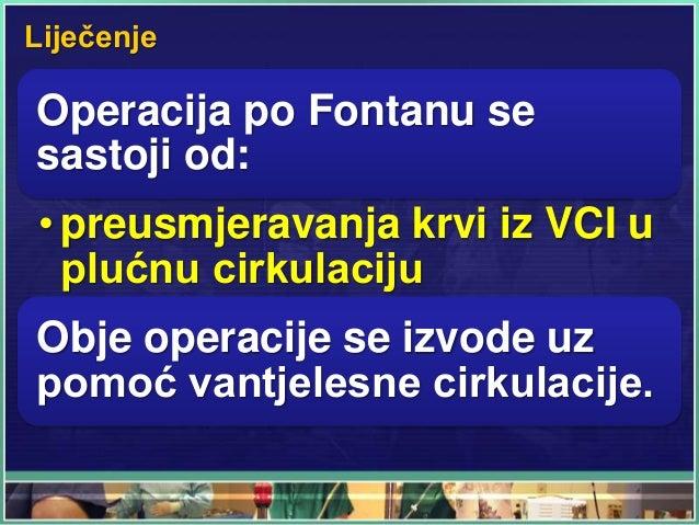 Liječenje Operacija po Fontanu se sastoji od: • preusmjeravanja krvi iz VCI u plućnu cirkulaciju Obje operacije se izvode ...