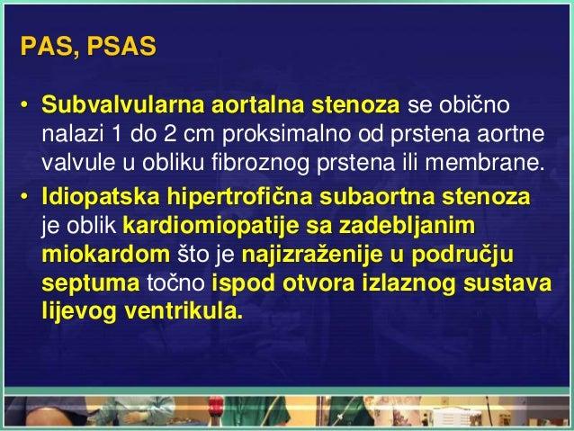 PAS, PSAS • Subvalvularna aortalna stenoza se obično nalazi 1 do 2 cm proksimalno od prstena aortne valvule u obliku fibro...