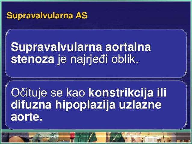 Supravalvularna AS Supravalvularna aortalna stenoza je najrjeđi oblik. Očituje se kao konstrikcija ili difuzna hipoplazija...