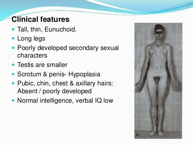 Klinefelters,turners,intersex- Dr.Gourav