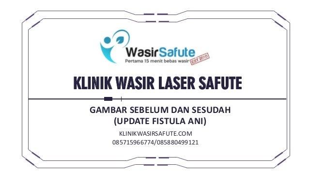 KLINIK WASIR LASER SAFUTE GAMBAR SEBELUM DAN SESUDAH (UPDATE FISTULA ANI) KLINIKWASIRSAFUTE.COM 085715966774/085880499121