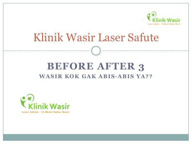 Klinik Wasir Laser Safute  BEFORE AFTER 3 WASIR KOK GAK ABIS-ABIS YA??