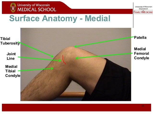 Knee 28 28 surface anatomy medial medial femoral condyle patella joint line ccuart Gallery