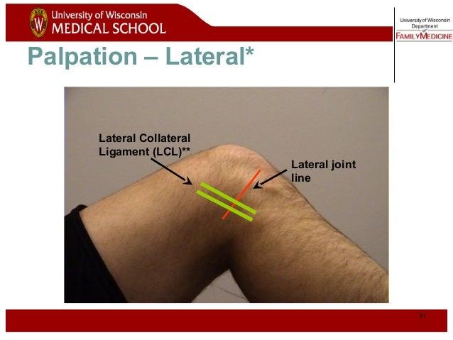 Knee 30 surface anatomy lateral patella head of fibula tibial tuberosity quadriceps 31 ccuart Image collections