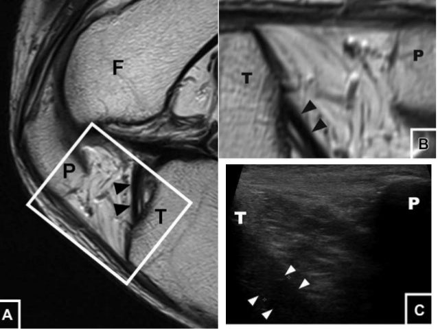Ultrasound of the Knee
