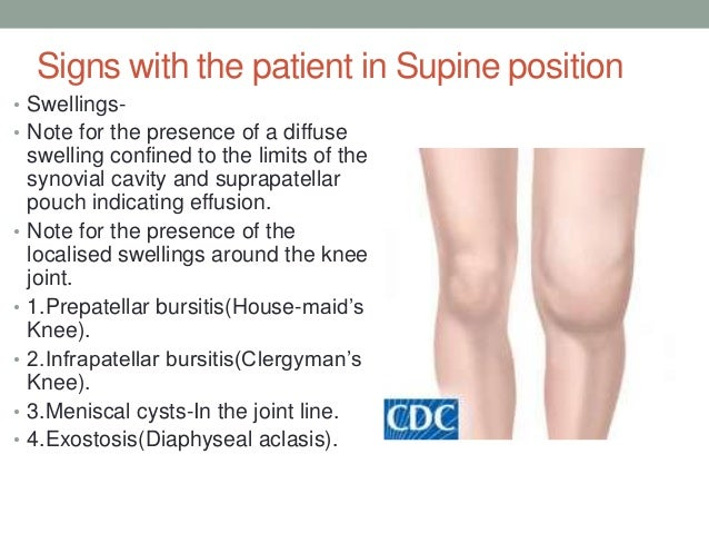 Anatomy and examination of the knee positive 38 ccuart Images