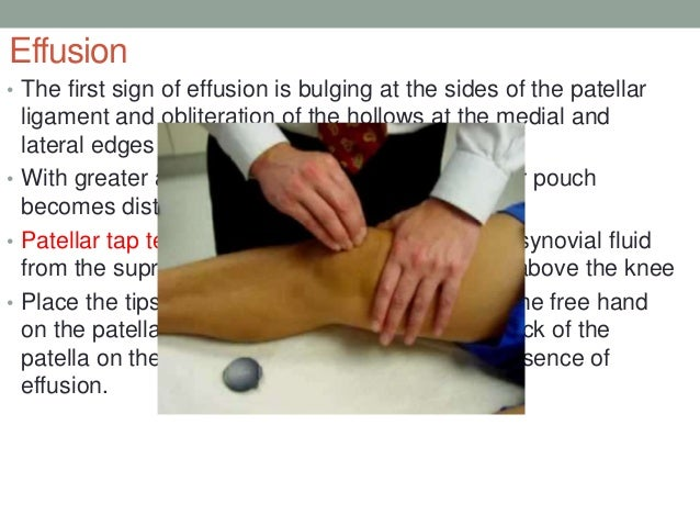 Anatomy and examination of the knee 45 ccuart Choice Image