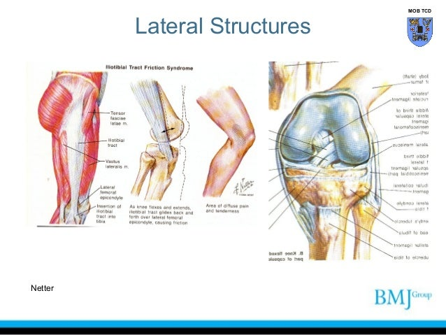 Anatomy of knee lateral structures netter mob tcd 29 lateral knee ccuart Gallery