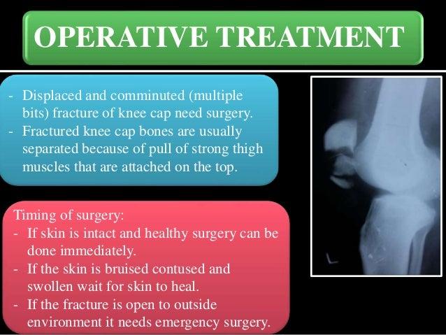 broken or cracked knee cap treatment