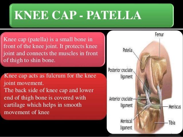 Knee cap (Patella) fractures Slide 3