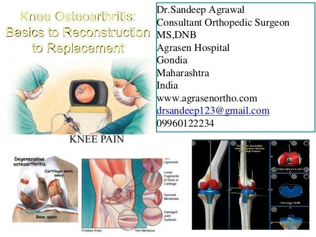 Dr.Sandeep Agrawal Consultant Orthopedic Surgeon MS,DNB Agrasen Hospital Gondia Maharashtra India www.agrasenortho.com drs...