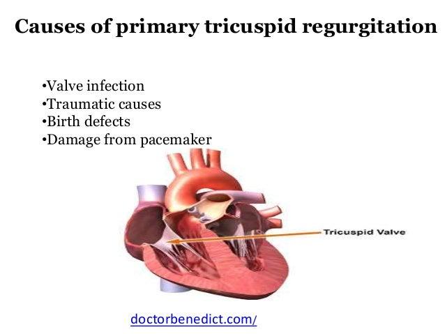 Know about tricuspid valve regurgitation