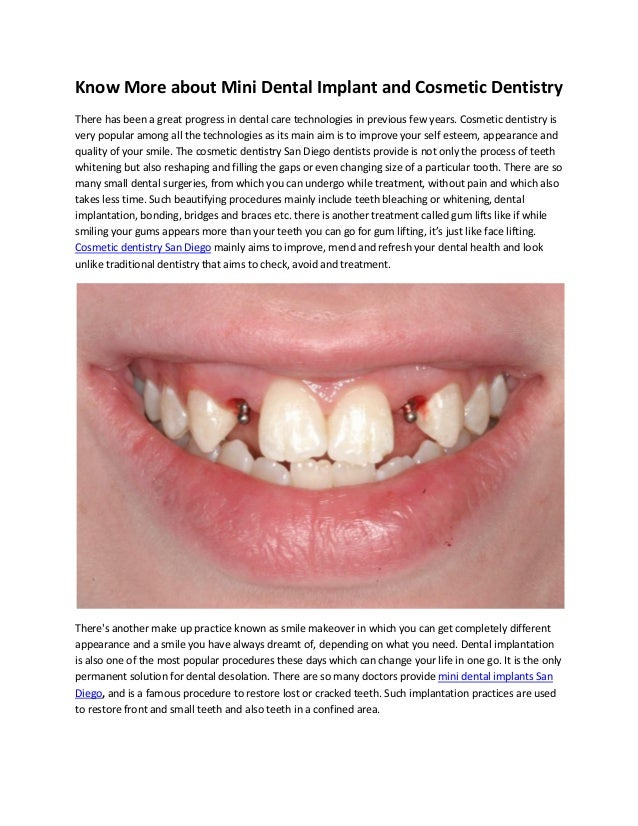 Know More about Mini Dental Implant and Cosmetic Dentistry There has been a great progress in dental care technologies in ...
