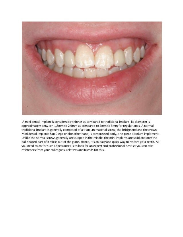 Know more about mini dental implant and cosmetic dentistry Slide 2