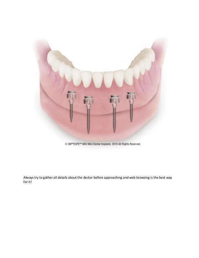 Know more about mini dental implant and cosmetic dentistry Slide 3