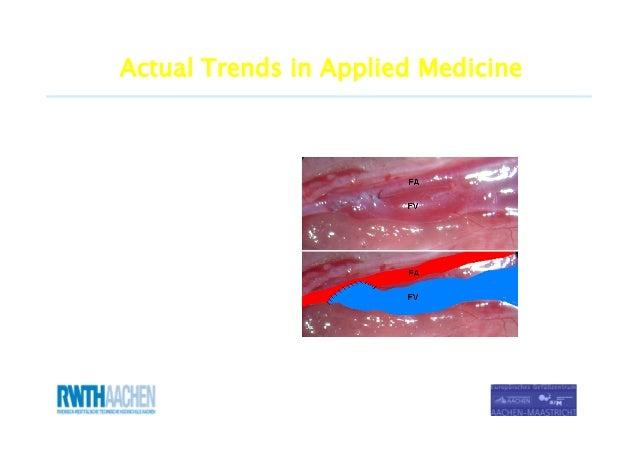 Maria Kokozidou (DVM, MSc, PhD) Actual Trends in Applied Medicine Clinic of Vascular Surgery European Vascular Centre Aach...