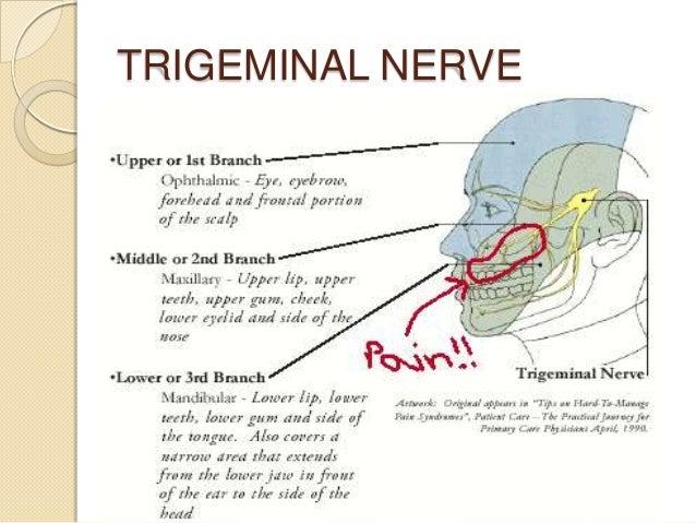 trigeminal nerve types chart: Trigeminal neuralgia