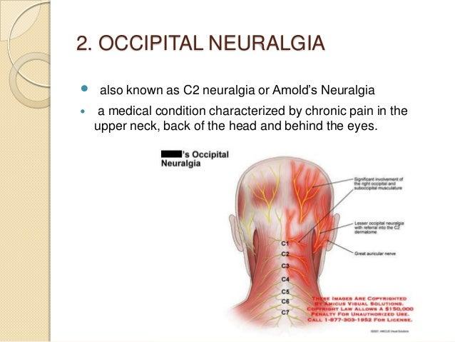 trigeminal neuralgia, Skeleton