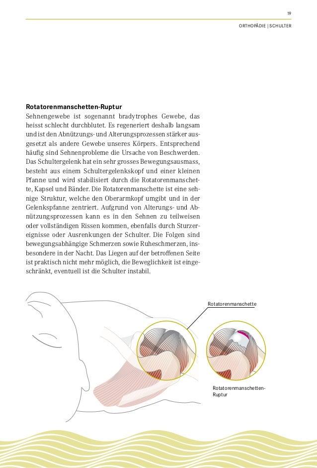 Ausgezeichnet Rotatorenmanschettenruptur Erholzeit Rahmen ...