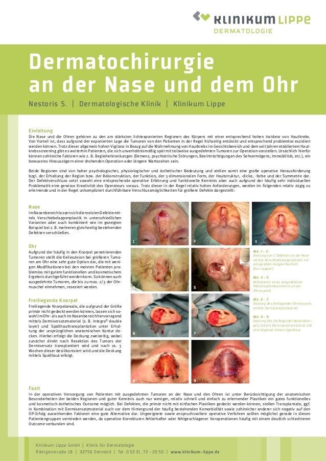dermatochirurgie-an-der-nase-und-dem-ohr-1-638.jpg?cb=1493046547