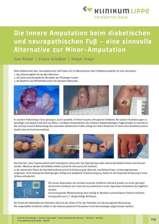 Die Innere Amputation beim diabetischen und neuropathischen Fuß – eine sinnvolle Alternative zur Minor-Amputation Uwe Ried...
