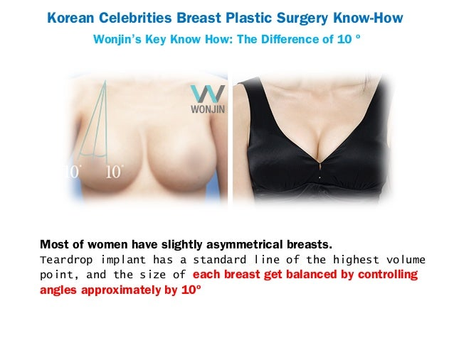cb4e97aab1 Korean Celebrities Breast Plastic Surgery ...