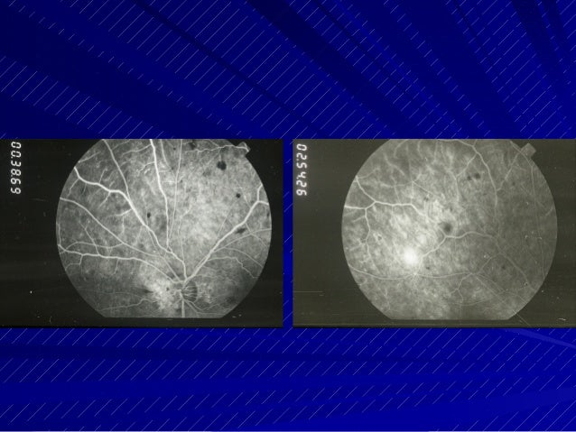 Kranias diagnostic challenges in retinal diseases 06 20 14