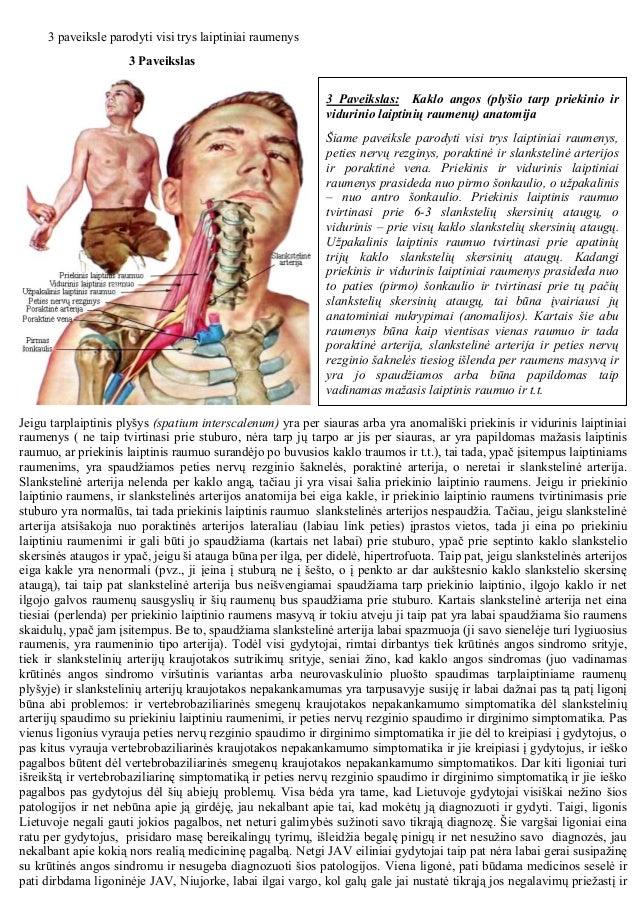 Krūtinės angos sindromas: anatomija, simptomatika, diagnostika ir chirurginis gydymas Slide 2