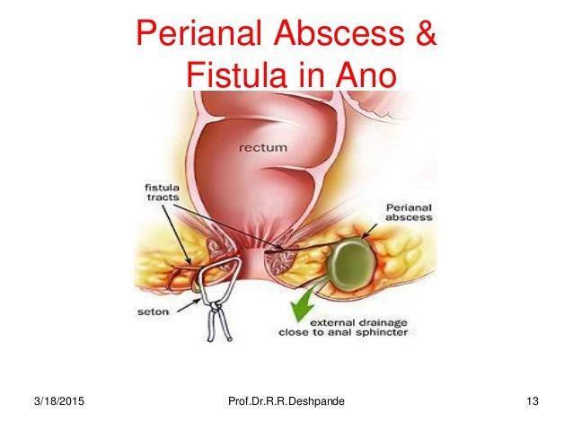 Crohns and anal fistula