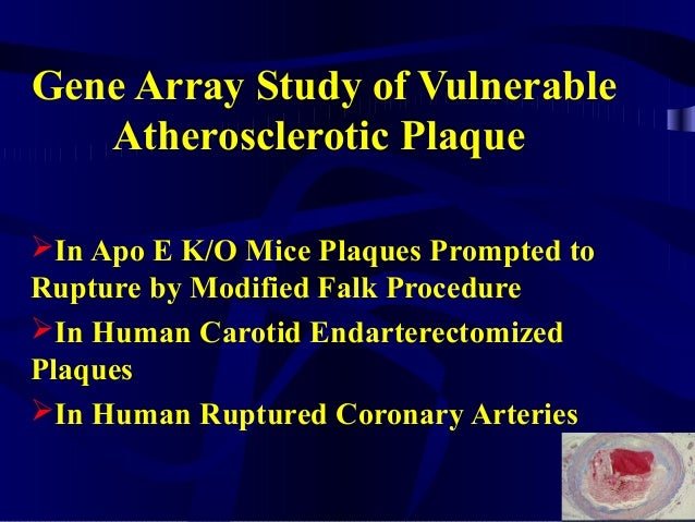 Gene Array Study of Vulnerable Atherosclerotic Plaque In Apo E K/O Mice Plaques Prompted to Rupture by Modified Falk Proc...