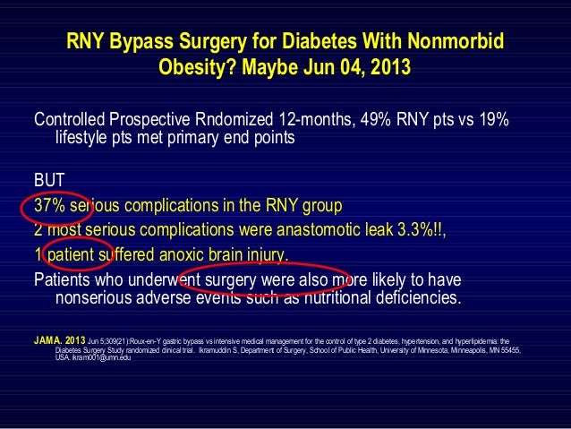 The Mini-Gastric Bypass: Best Rx Diabetes
