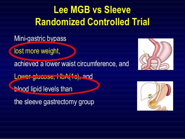 gastric bypass versus sleeve gastrectomy Prospective randomized clinical trial aiming to compare laparoscopic roux-en-y gastric bypass (rygb) and sleeve gastrectomy (sg) with primary outcome on excess weight loss, and secondary outcomes on nutritional status, glycolipid profile, quality of life and pain assessments no consensus is.