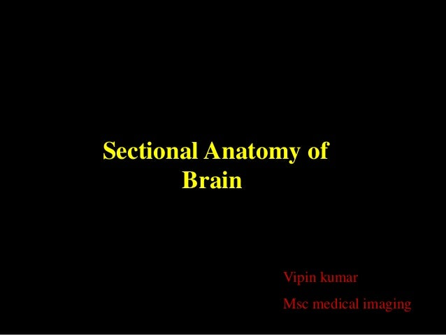 Sectional Anatomy of       Brain                Vipin kumar                Msc medical imaging
